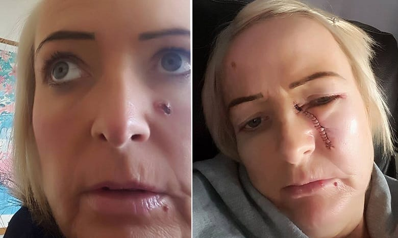 A Mother's Obsession with Tanning Leads to Scars Yet Insists to Use Sunbeds